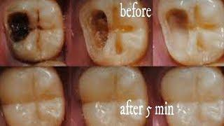 కలబందతో ఇలాచేస్తే 5 నిమిషాల్లో మీ పిప్పి పళ్ళు పోయి తెల్లగా మెరిసిపోతాయి|Get WhiteTeeth In 2 Minutes