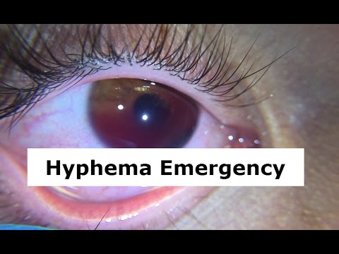 hyphema pictures hyphema emergency youtube 2663