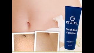 Best Stretch Mark Cream - See How Revitol