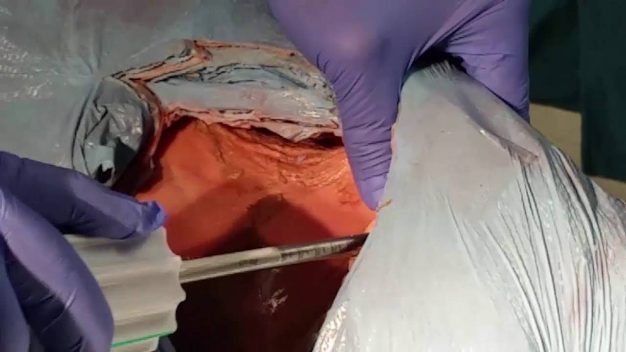 Corex Olif Approach Anterior Iliac Crest Youtube