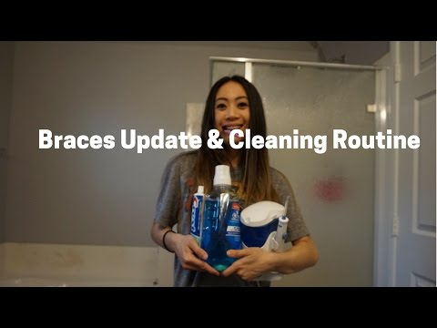 BRACES JOURNEY: HOW I KEEP MY TEETH CLEAN WITH BRACES UPDATED