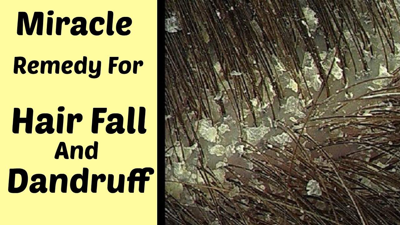 how to avoid dandruff in hair