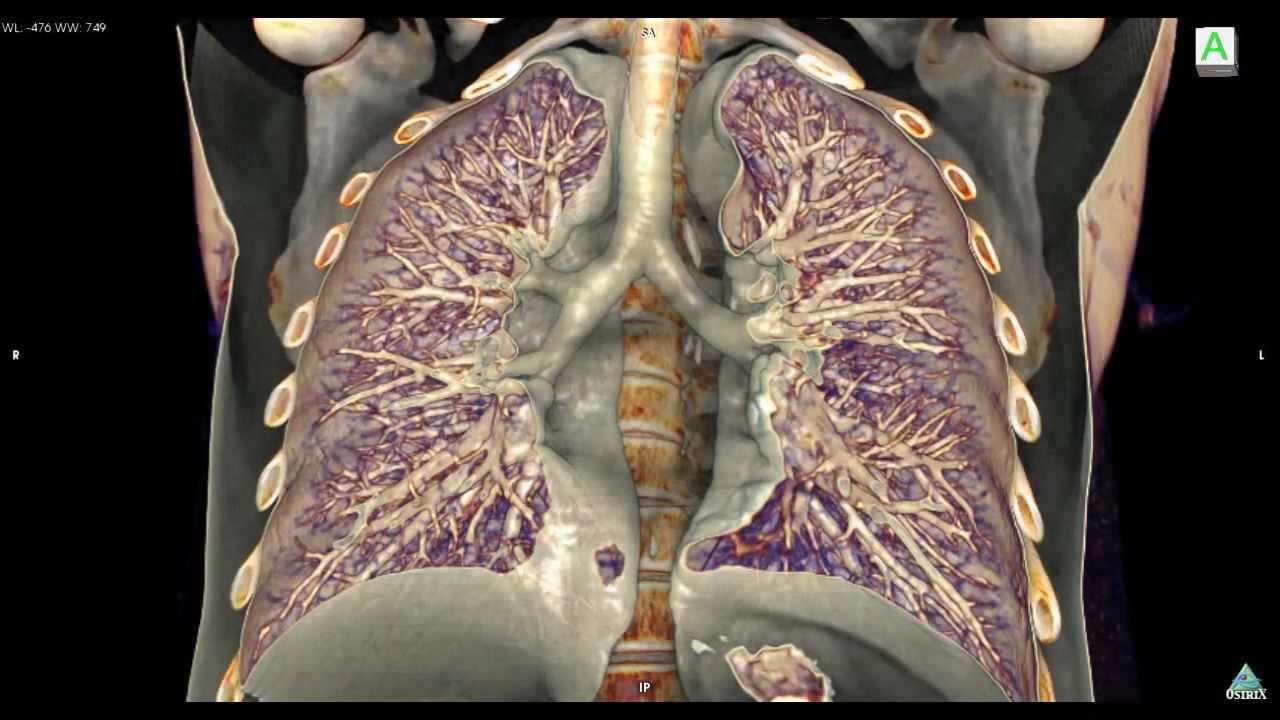 X ray chest anatomy