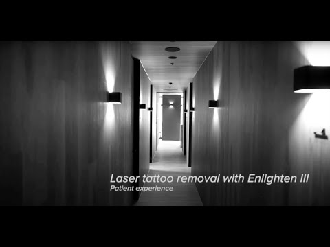 Laser Tattoo Removal with the Cutera enlighten III - Aesthetic Harmony