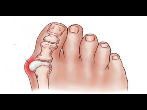 Как избавится от косточек на ногах без операций дома