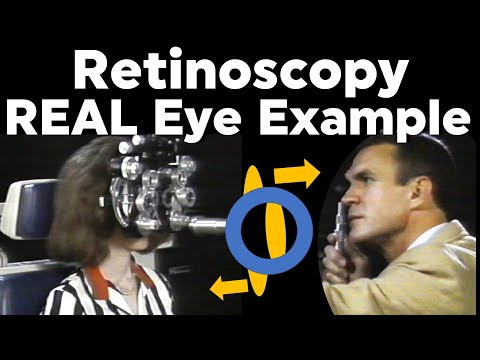 Retinoscopy Real Eye Full Example Plus Cylinder With Phoropter Refraction Of The Eye