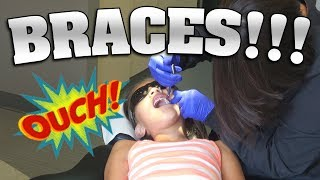 JILLIAN GETS BRACES!!! OMG, I'm So Nervous!
