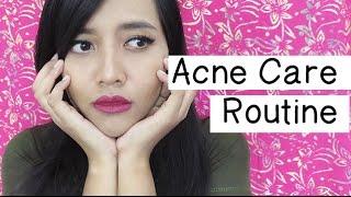 Acne Care Routine (Indonesia)   dytarez