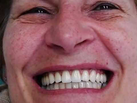 Fotos de protese odontologica