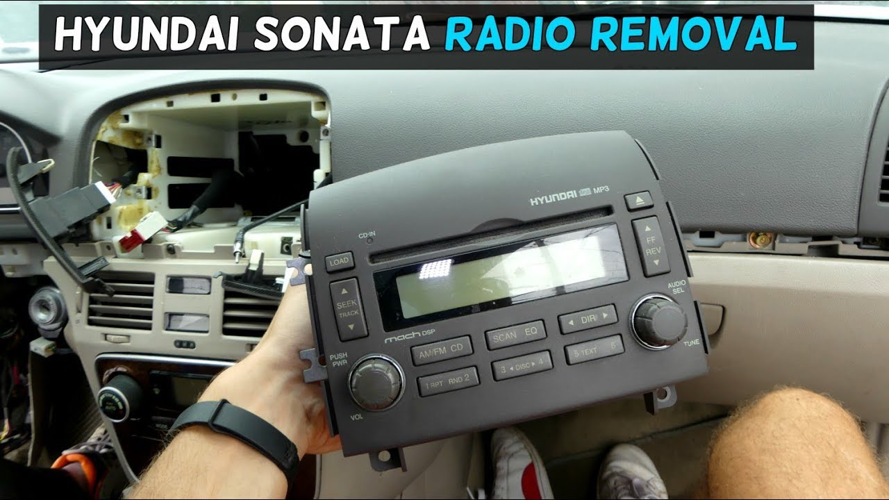 hight resolution of how to remove and replace radio on hyundai sonata