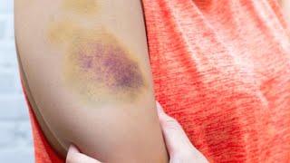 Кровоизлияния на коже: какие анализы стоит сдать? | Доктор Мясников