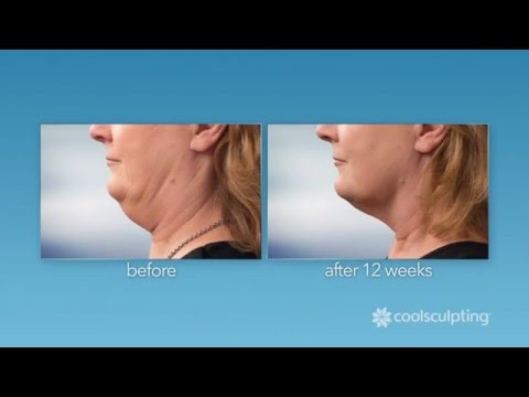 CoolSculpting: Common Questions