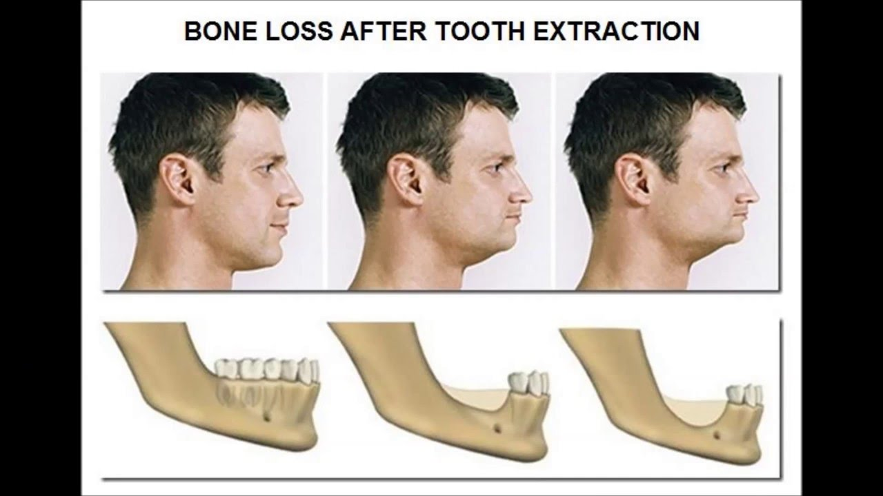 Facial bone loss