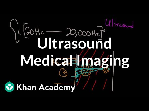 Ultrasound medical imaging | Mechanical waves and sound | Physics | Khan Academy