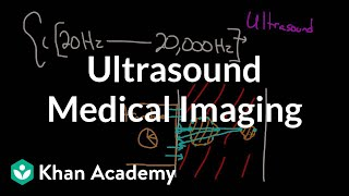 Download Ultrasound medical imaging   Mechanical waves and sound   Physics   Khan Academy