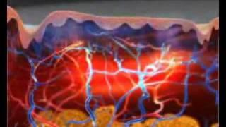 LavaTRON RF Diathermy