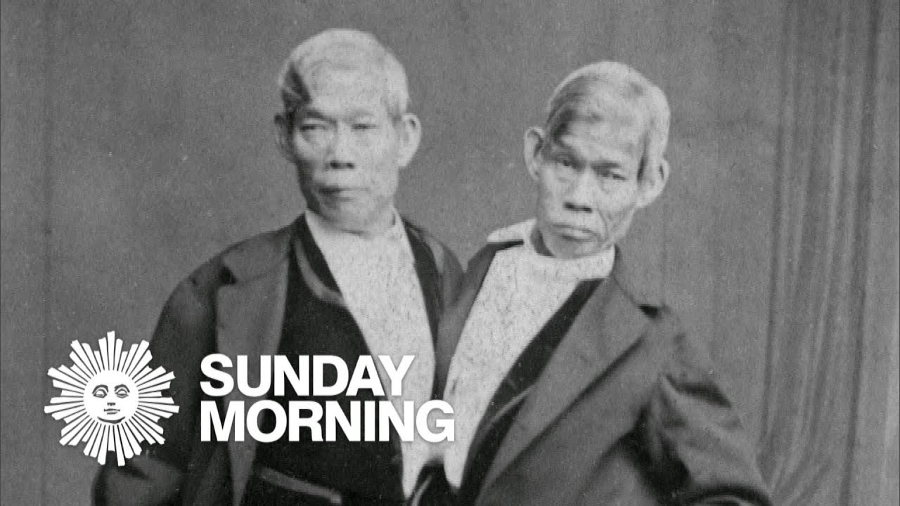 Pity, that asian siamese twins the valuable
