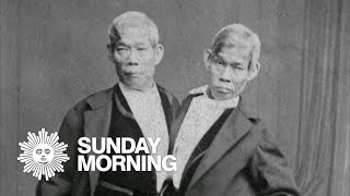 """""""Mobituaries"""": Chang and Eng Bunker, the original Siamese twins"""