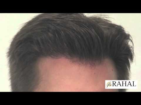 Dr Rahal Results 3082 Grafts Hair Transplant