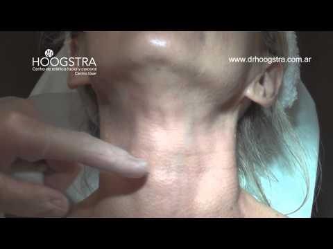 Arrugas de cuello - Relleno con Ácido Hialurónico (14098)