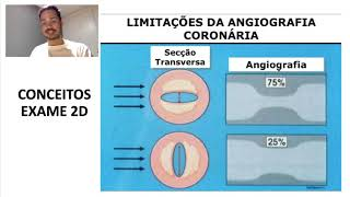 Conceitos básicos de Coronariografia: o básico que todo residente deve saber.