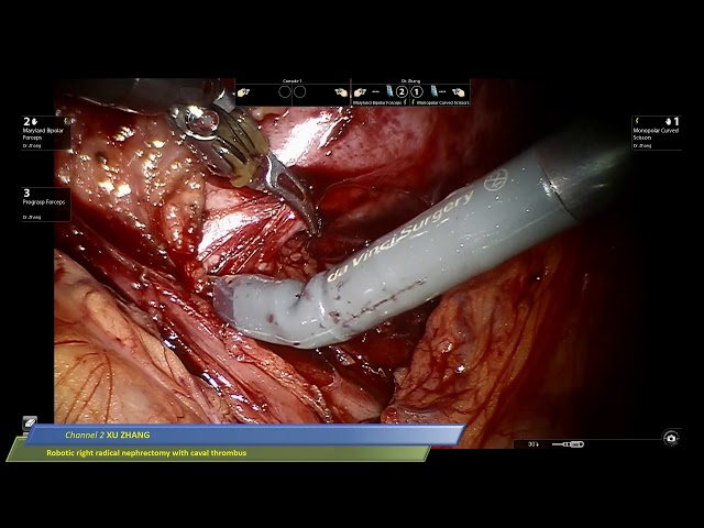 Xu Zhang - Robotic Right Radical Nephrectomy with Caval Thrombus
