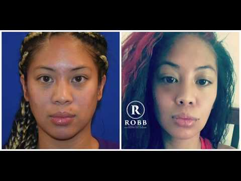 Atlanta Facial Plastic Surgeon Dr. Philip Robb Jr. Highlights Buccal Fat Removal