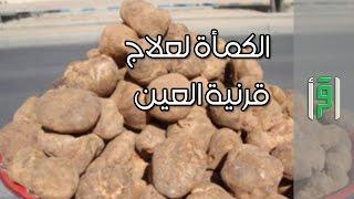 الكمأة لعلاج قرنية العين  - الدكتورة أمنة علي صديق