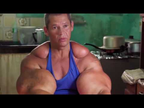 Too much synthol, destroyers of muscles