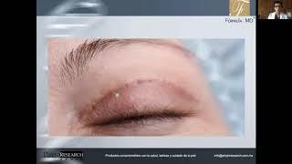 Desvanecimiento de cicatrices por Blefaroplastia