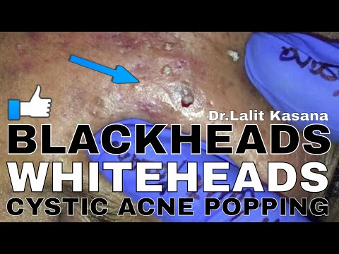 BLACKHEAD/WHITEHEAD/CYSTIC ACNE POPPING FULL VIDEO