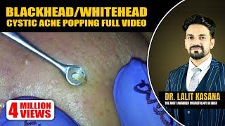 BLACKHEAD/WHITEHEAD/CYSTIC ACNE POPPING FULL VIDEO