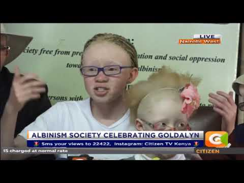 Let us celebrate Albinism- Goldalyn Kakuya Tanga