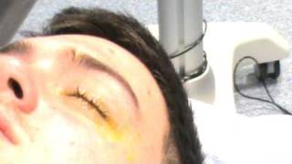 Keratoconus - Corneal Collagen Crosslinking (C3R or UV-X) - Cross Linking - Stage 3 - Adam Watson