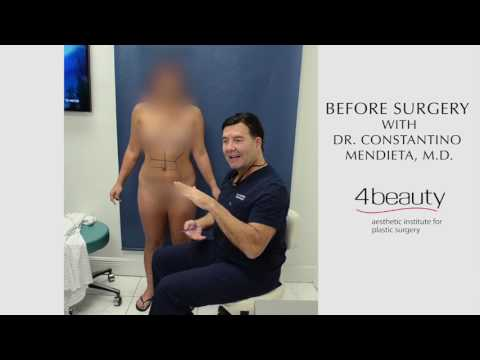 before-surgery-liposuction-mark-up-with-dr.-mendieta