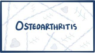Osteoarthritis - causes, symptoms, diagnosis, treatment & pathology