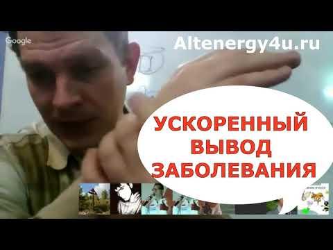 Катушка Мишина: ускоренный вывод заболевания через кожу