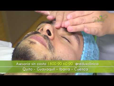 Comercial Redux Clínica - Jonathan Estrada