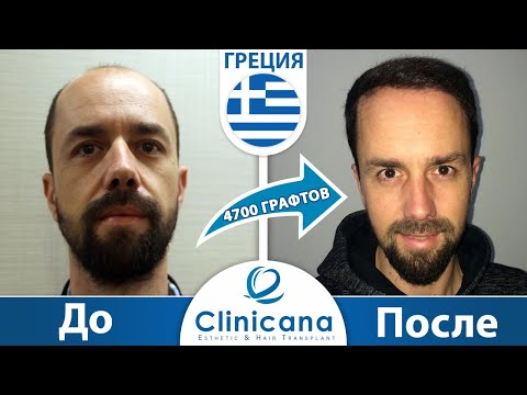 Пересадка волос в Турции методом FUE, лечение облысения, отзывы клиентов о клинике Clinicana