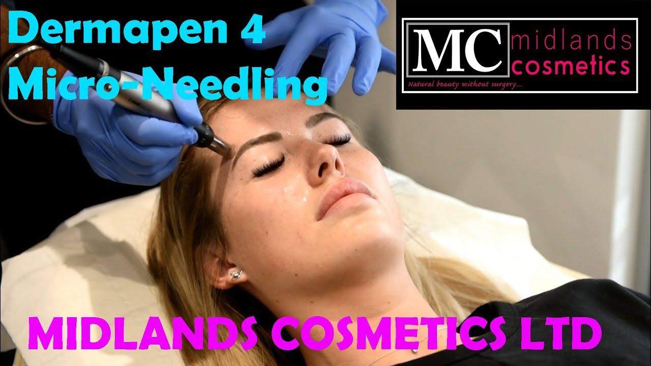 Dermapen 4 Treatment with Midlands Cosmetics
