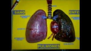 Maquetas Escolares - Como Hacer una Maqueta de los Pulmones casi Real