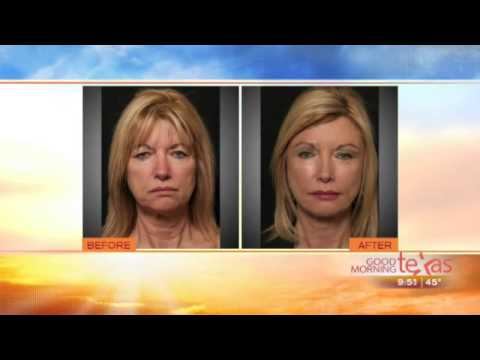 Facelift Surgery Dallas Texas | Facial Rejuvenation | Dr George Toledo