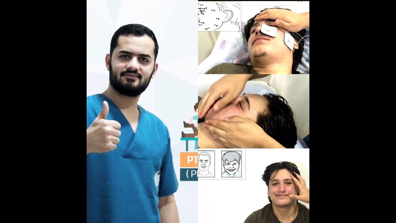 المعالجة الفيزيائية لشلل بل اللقوة المحيطة Bell S Palsy Physical Therapy Youtube