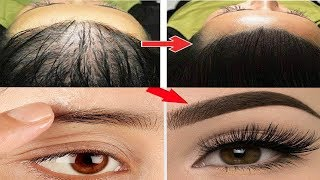 Video Saç Ve Kaş Gürleştirme - Kirpik Uzatan Doğal Yöntem Sarımsak Kürü - Güzellik Bakım download MP3, 3GP, MP4, WEBM, AVI, FLV September 2018