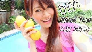 DIY Beauty: Lemon, Honey, Sugar Scrub {Acne & Scar Removal}