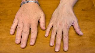 Difference Between Gigantism and Acromegaly