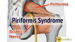 Palm Harbor Chiropractor | Piriformis Syndrome