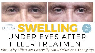 Possible Causes and Treatment of Swelling Under the Eyes with Cosmetic Fillers