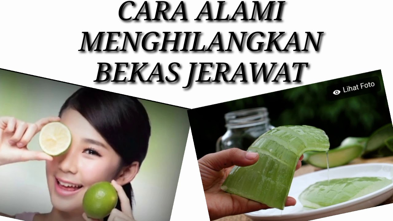 CARA MENGHILANGKAN BEKAS JERAWAT SECARA ALAMI - YouTube