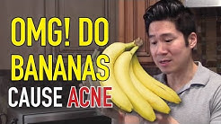 hqdefault - Are Bananas Okay For Acne
